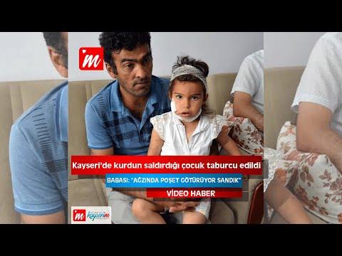 Kayseri'de kurdun saldırdığı çocuk taburcu edildi