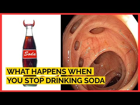 How Consuming Soda Is Aging The Body
