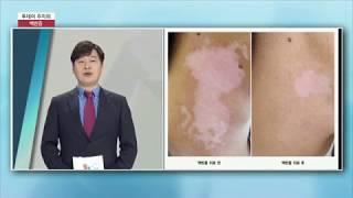 백반증 치료  부산스타피부과