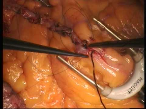 beating heart surgery lima grafting to lad youtube