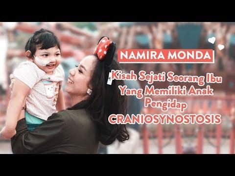 Download Kisah Nyata Perjuangan Namira Monda, Memiliki Anak Dengan Craniosynostosis | Mom Story Mp4 baru