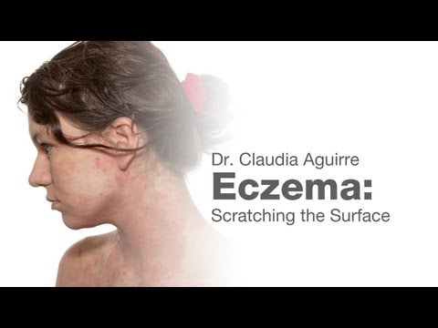 Eczema: Scratching the Surface