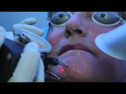 Tratamiento de arrugas con láser CO2 fraccionado SmartSkin de Cynosure