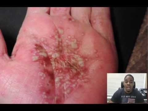 Can You Get Herpes On Your Hands? 2