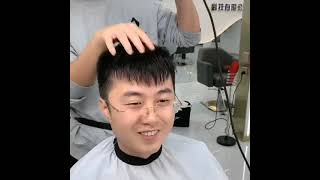 M자탈모가 머리숱많아지는법 남자가발 대머리 이마 앞머리