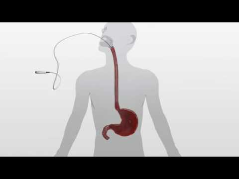 Barrx 360 RFA Balloon Catheter Animation