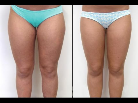 Get Rid of Fat on Your Inner Thighs - YouTube