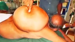 40-Pound Back Cyst, Largest Lipoma on Planet Earth