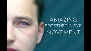 Amazing Artificial Eye Movement! | John Pacey-Lowrie Artificial Eye Clinic