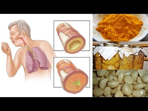 Natural Remedies for Chest Congestion Relief