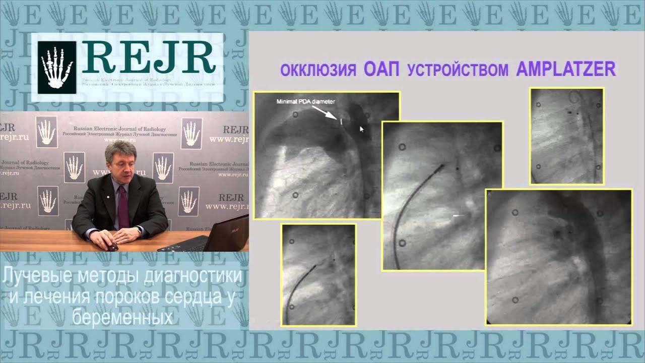Луч. методы диагн. и леч. пороков сердца у беременных
