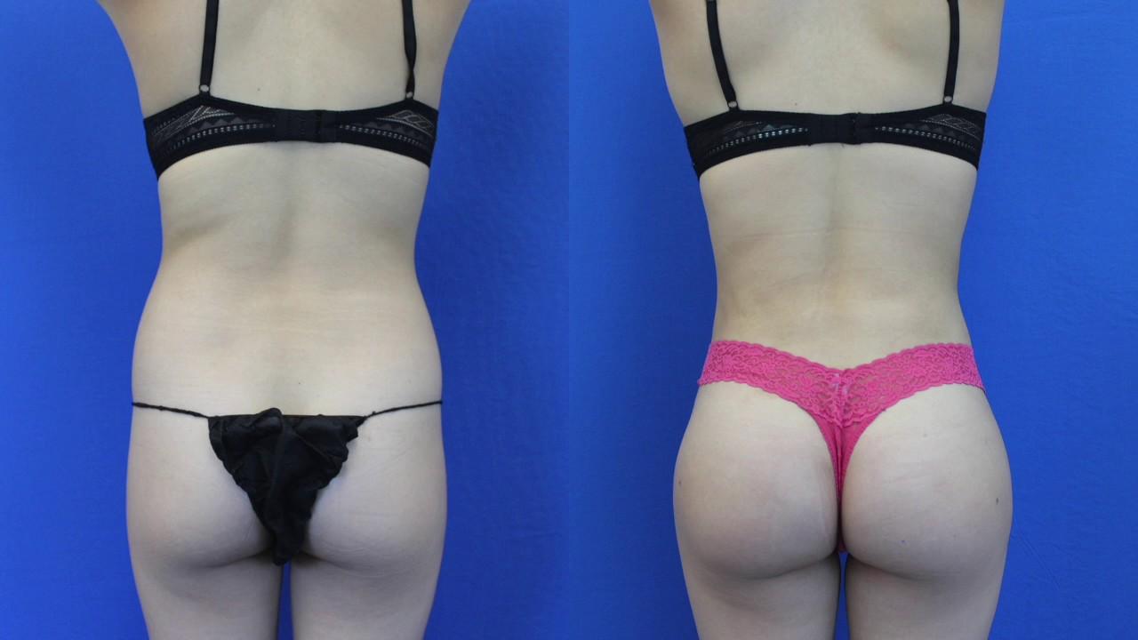Brazilian butt lift challenge