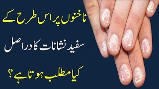 What vitamin deficiency causes white spots on your nails | Raaztv