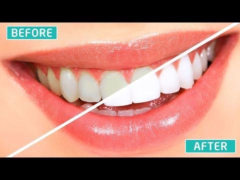 cara-memutihkan-gigi-secara-permanen-dalam-waktu-singkat-(100%-ampuh)