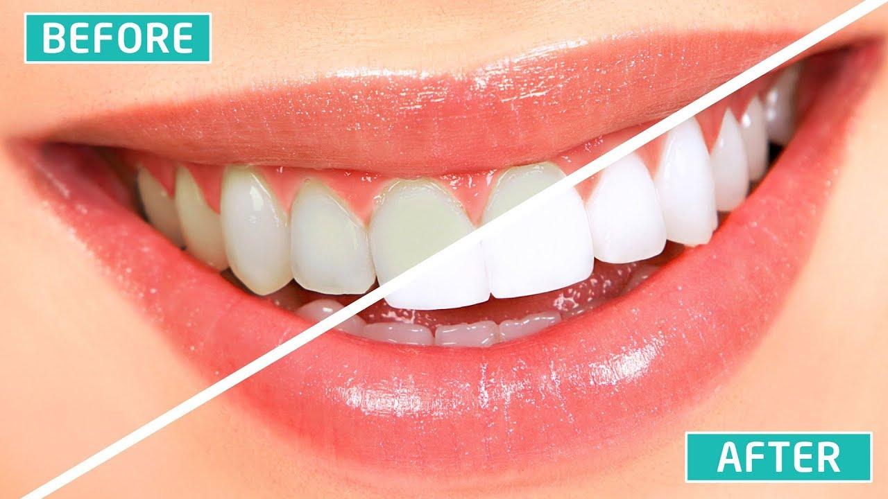 Cara Memutihkan Gigi Secara Permanen Dalam Waktu Singkat 100 Ampuh
