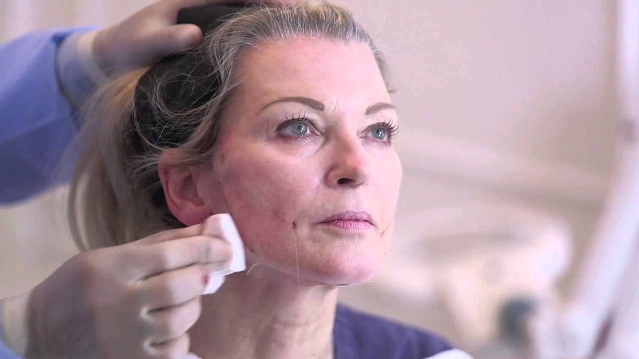 One Stitch Facelift SILHOUETTE SOFT GILLIAN TAYLFORTH Y15M01D16 HD
