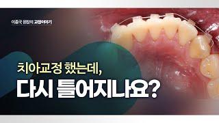 치아교정했는데 다시 틀어지는 이유 & 해결 방법…