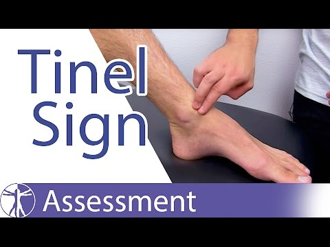 Tinel's Sign (Ankle)⎟Peripheral Nerve Injury