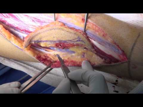 Fibula flap HD