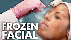 hqdefault - Dry Ice Cryotherapy Acne