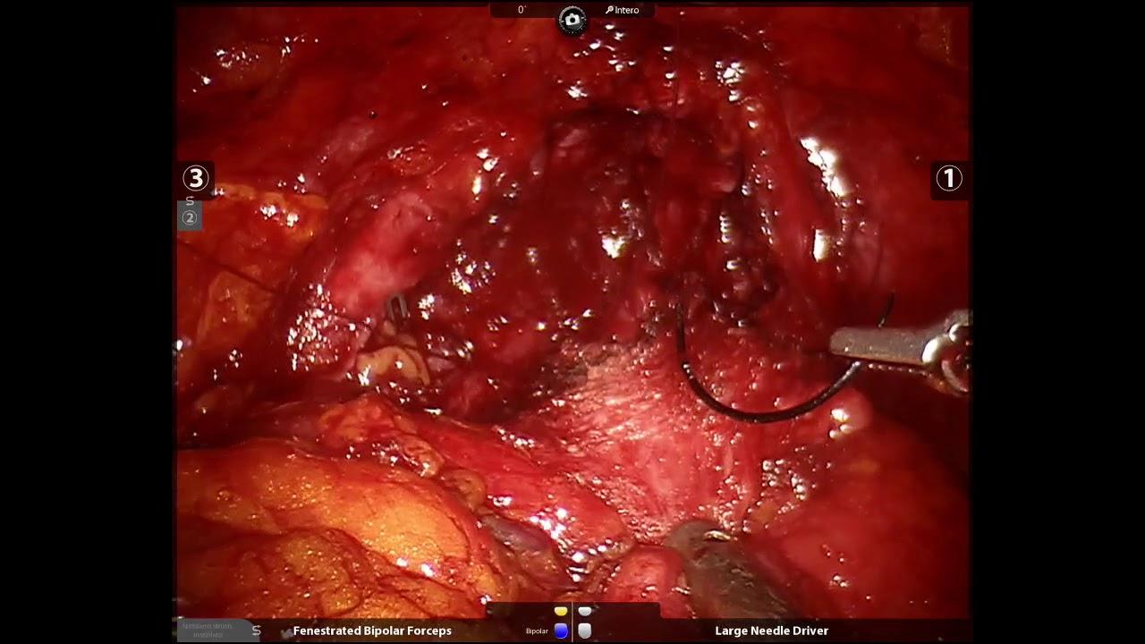 recupero funzionale dopo intervento della prostata