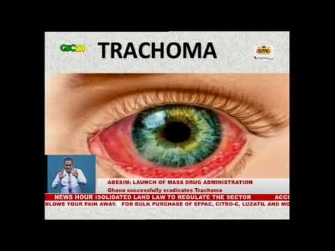 W.H.O to officially declare Ghana Trachoma- free