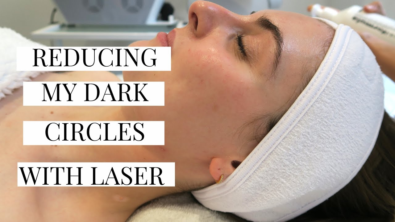 GETTING MY DARK CIRCLES LASERED WITH CLEARLIFT   Marta Canga