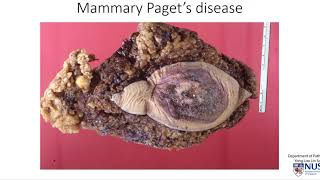 Breast Mammary Paget's Disease