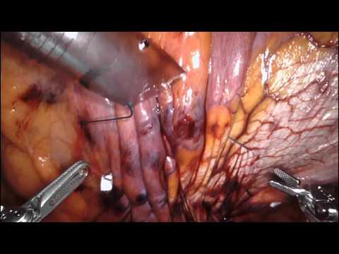 Robotic Xi Right Hemidiaphragmatic Plication