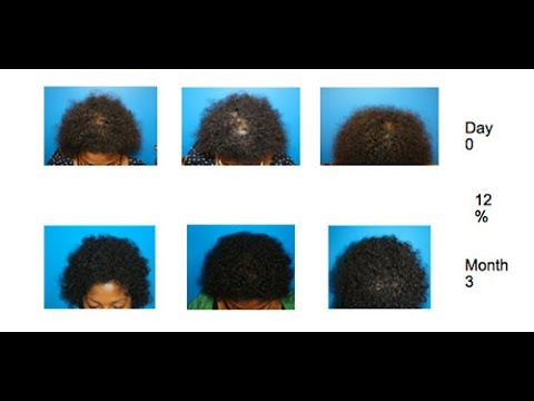African American Hair Loss Treatment -PRP + ACell Hair Growth Therapy - New York