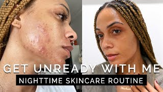 Skincare - How I Cleared My Acne! GET UNREADY WITH ME - Nighttime Skincare Routine