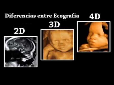 Diferencias entre Ecografia 4D, 3D y 2D