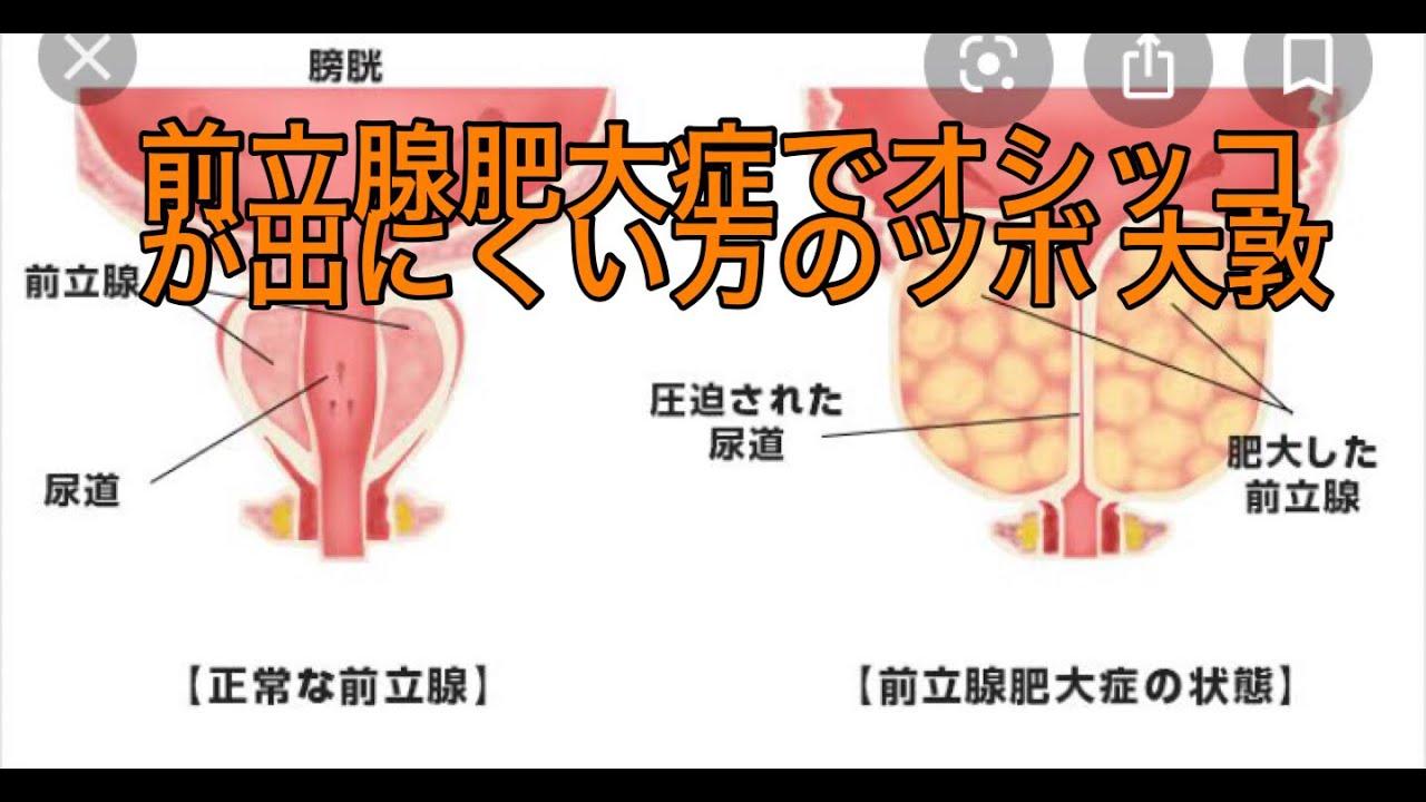 前立腺肥大でオシッコが出にくいあなたへ。#殘尿 #頻尿 #前立腺 ...