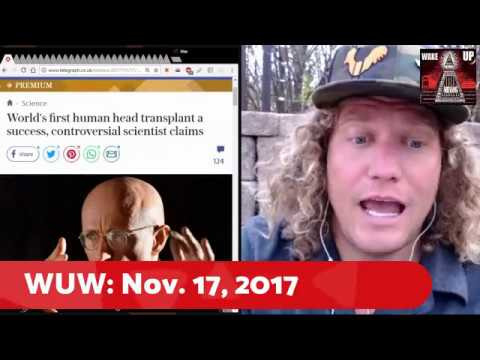World's first human head transplant a success: Wake Up Wyoming: 11.17.17