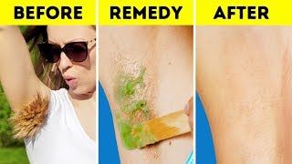 SOLVE ALL THESE PAINFUL BEAUTY PROBLEMS ONCE AND FOR ALL