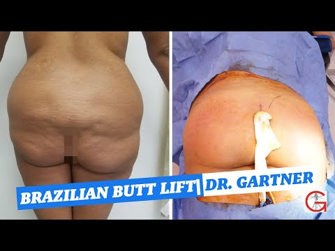 Before And After Brazilian Butt Lift| BBL| Liposuction| Dr. Gartner| Gartner Plastic Surgery