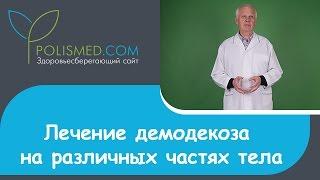 Лечение демодекоза глаз, ресниц, бровей, лба, головы, ушей