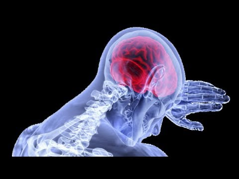 Внутричерепное давление лечение// Головная боль! Как снизить внутричерепное давление - № 13