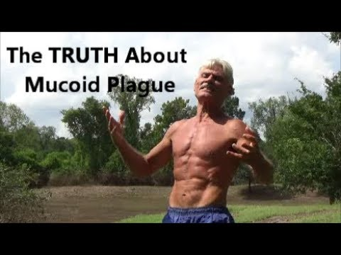 The Truth About Mucoid Plaque Youtube