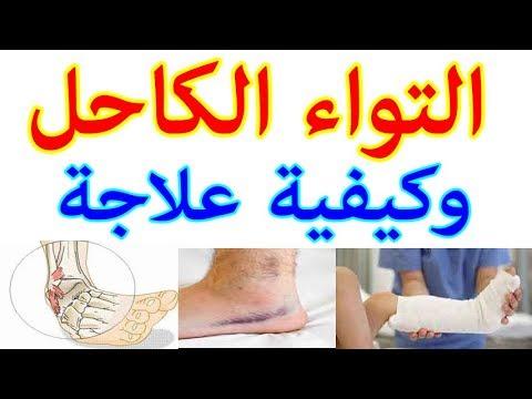 التواء الكاحل الاسباب الاعراض العلاج موضوع شامل Youtube