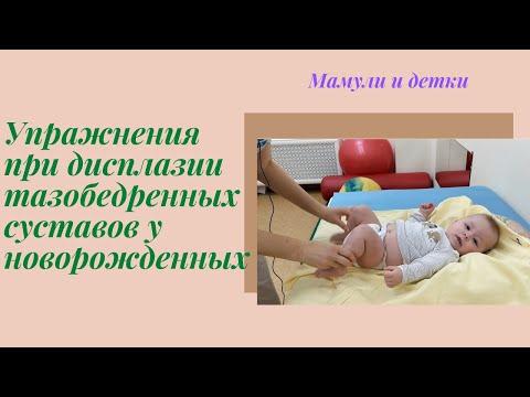Упражнения при дисплазии тазобедренных суставов у новорожденного