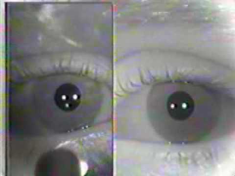 Abnormal - Pupillary Light Reflex