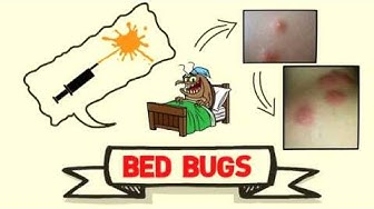 Bed Bugs Control in SOUTH MIAMI , FL  ( Removal Treatment )