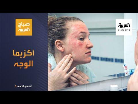 صباح العربية   أكزيما الوجه ما أسبابها وطرق العلاج؟