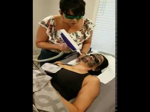 Carbon (or Charcoal) Laser Peel at All About You Salon and Medi-Spa - New Port Richey, FL