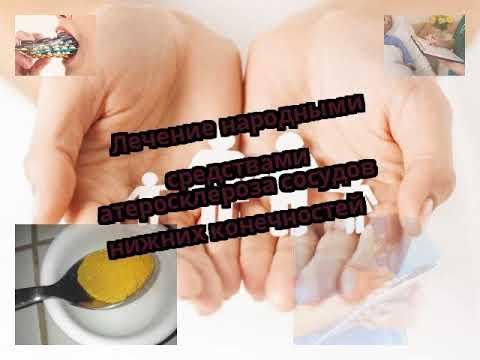 Лечение народными средствами атеросклероза сосудов нижних конечностей