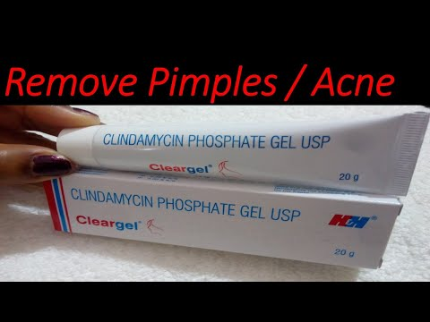 Clear Gel Review, How To Use Clindamycin Gel / Get Rid Of Acne/Pimple