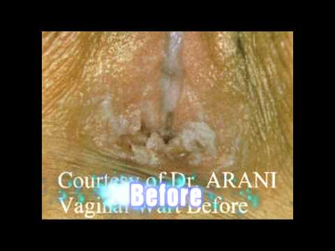 Genital Anal Warts Treatment Pictures Courtesy Of Dr. Arani