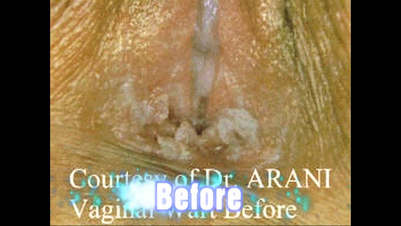 Anal warts surgery discussion
