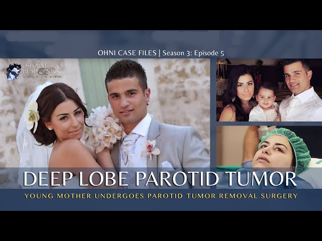 Deep Lobe Parotid Tumor Surgery for Young Mother at Osborne Head & Neck Institute